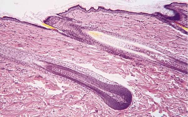 たかが「育毛剤」が遂にここまできた。女性の薄毛治療に革新? 医薬品レベルの育毛剤が今話題!